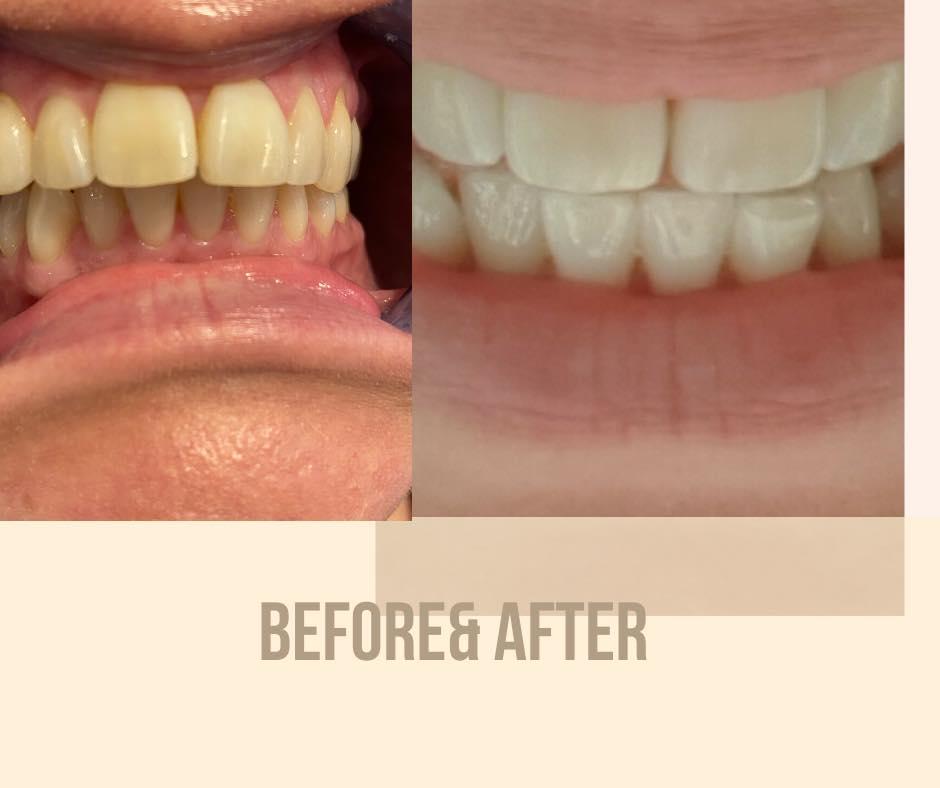 Tanden Bleken, voor en na
